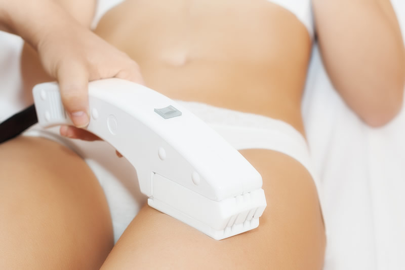 epilation lumiere pulsée